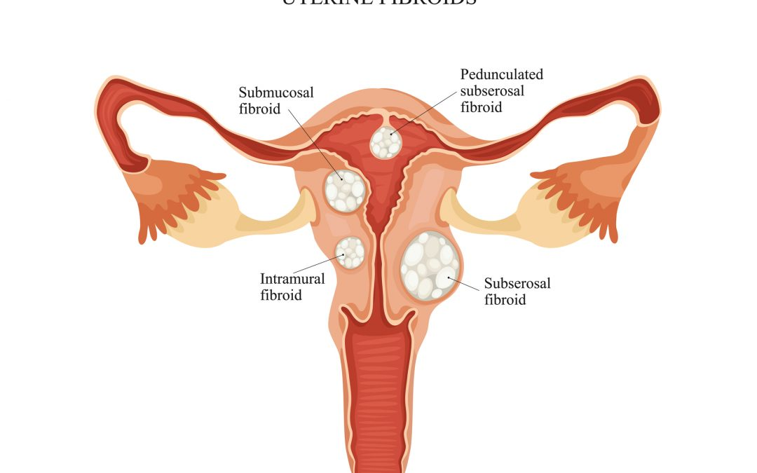 Keep the uterus, get rid of the fibroids